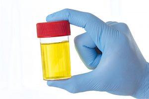 waarom-het-verzuren-van-de-urine-van-kalveren-zinvol-kan-zijn